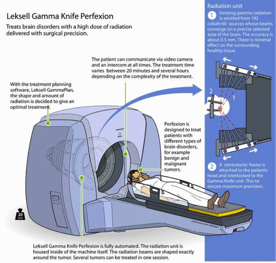 Rocky Mountain Gamma Knife Leskell
