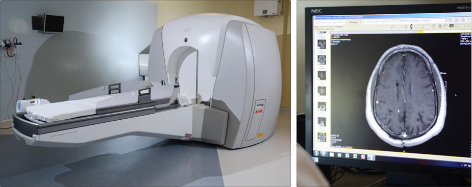 Rocky Mountain Gamma Knife Scanning Procedure